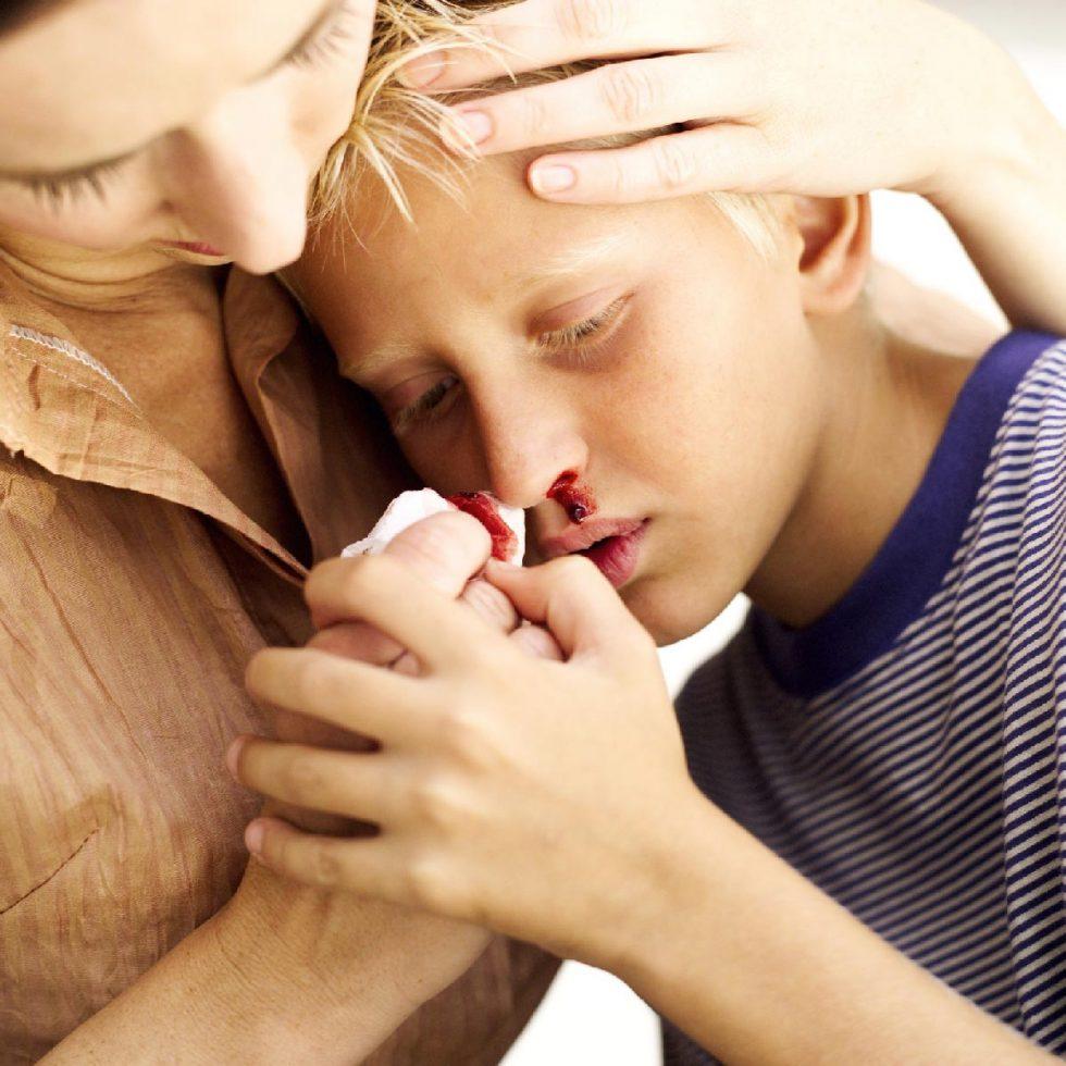 кровб из носа у мальчика