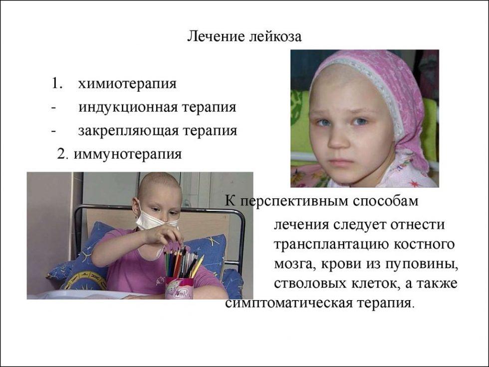 Лейкозы у детей