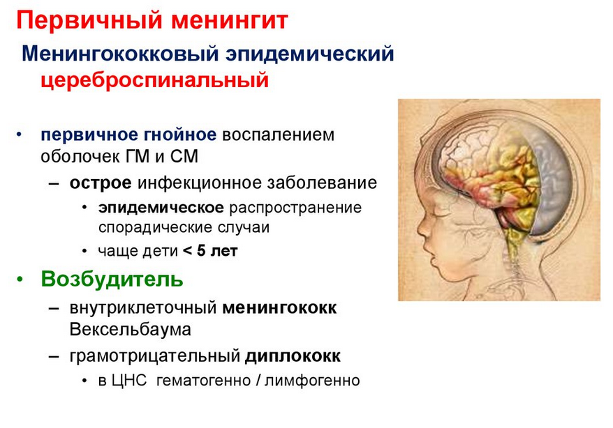 Менингит эпидемический