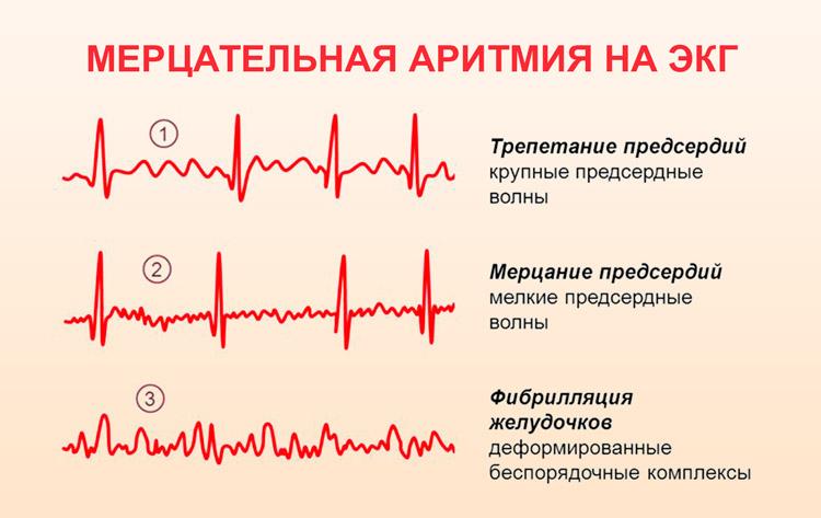 Мерцательная аритмия типы