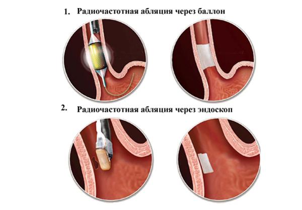 Мерцательная аритмия лечение