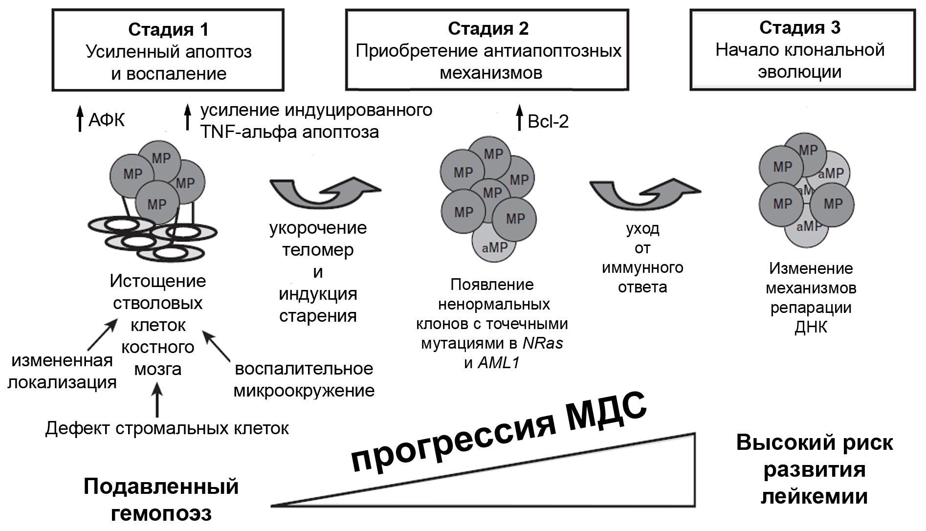 Миелодиспластический синдром