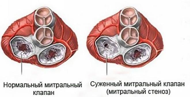 Митральный стеноз