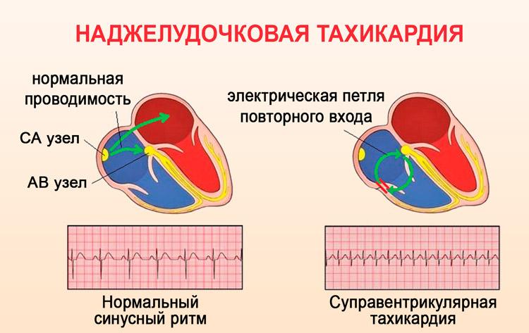 Наджелудочковая тахикардия