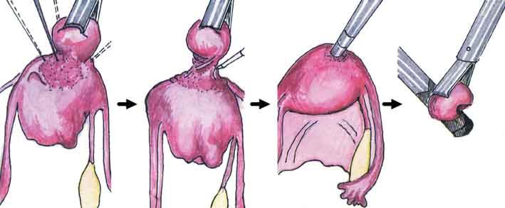 Некроз миоматозного узла