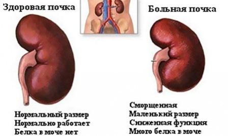 Несахарное мочеизнурение