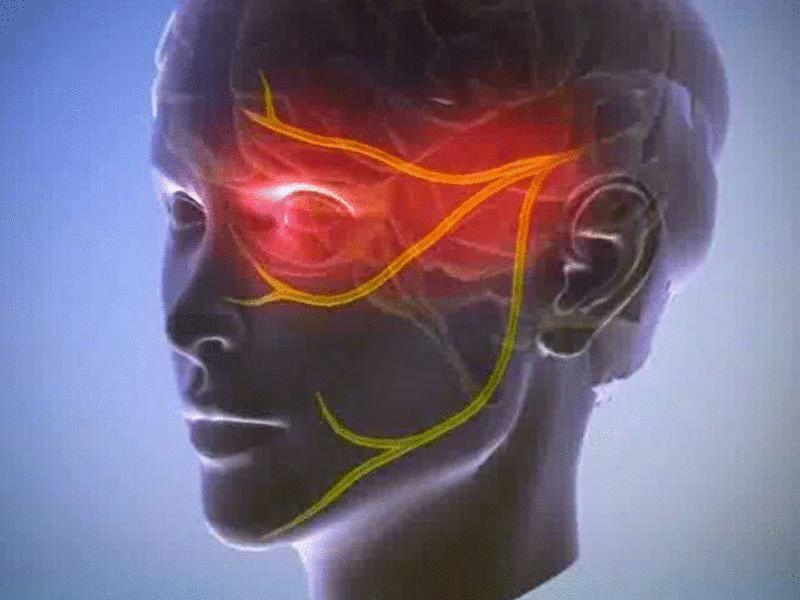 Невралгия мигренозная
