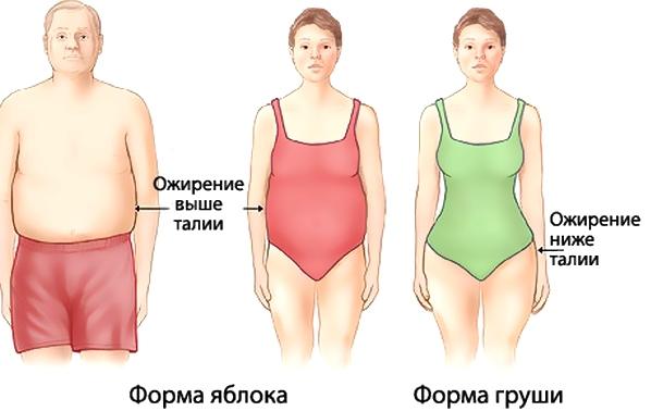 Определить свой тип ожирения и решить проблему