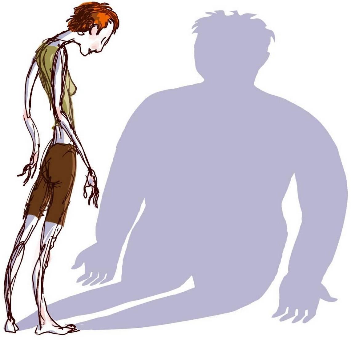 Ожирение и булимия