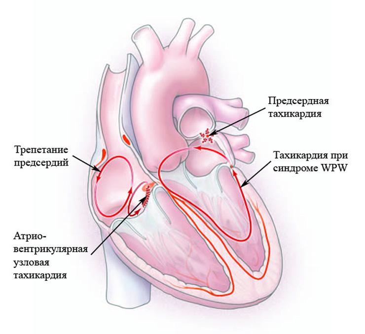 Признаки пароксизмальной тахикардии