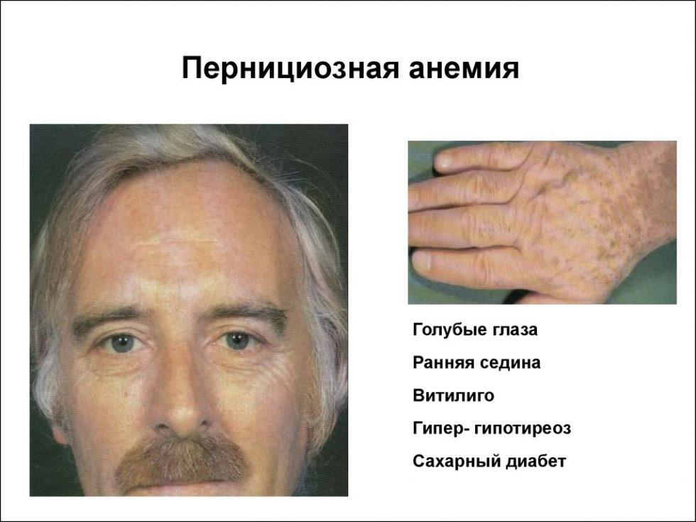 Пернициозная анемия