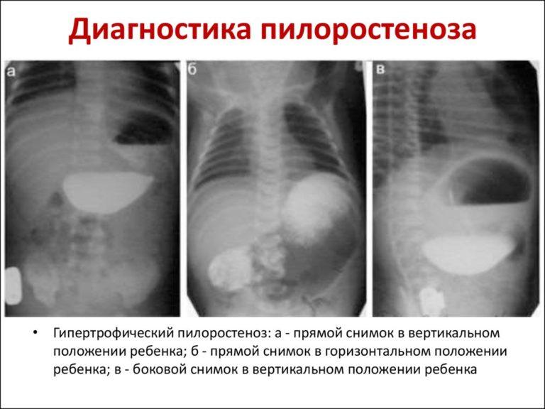 Пилоростеноз диагностика