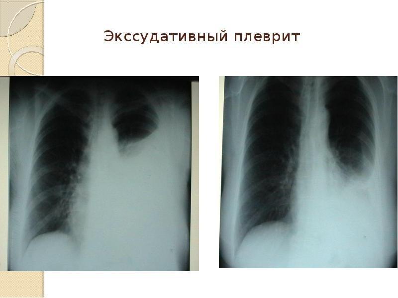 Плеврит экссудативный
