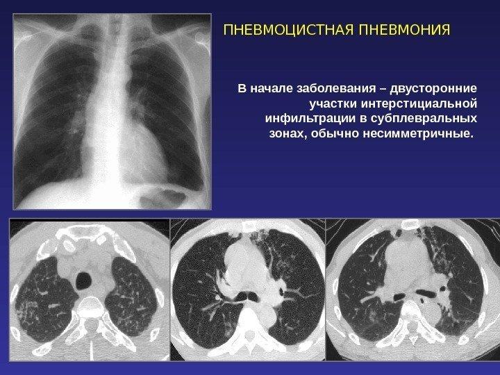 Пневмонии пневмоцистные