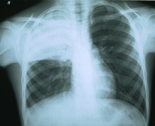 Пневмония крупозная