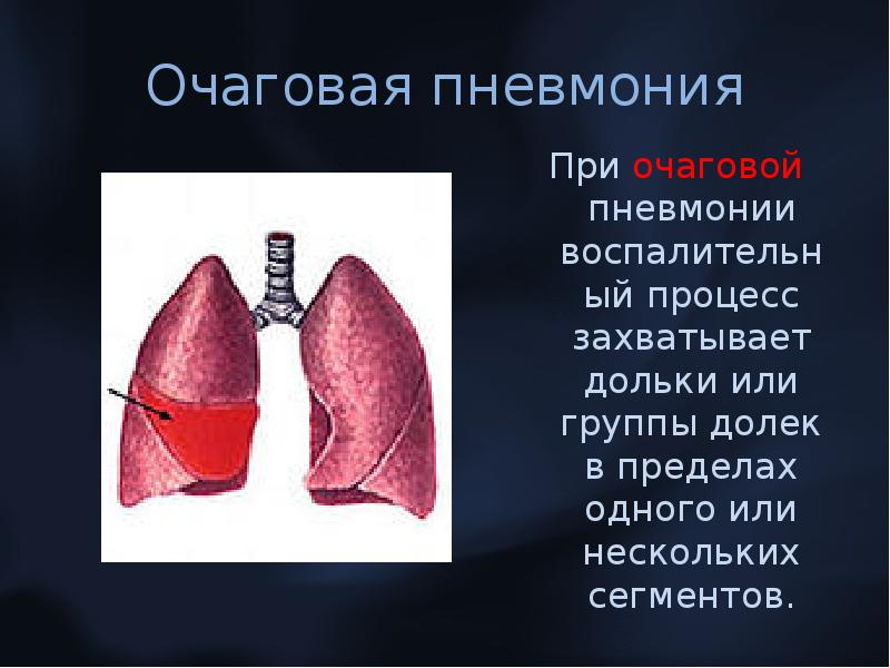 Пневмония очаговая