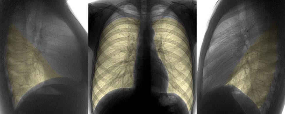Пневмония очагового типа