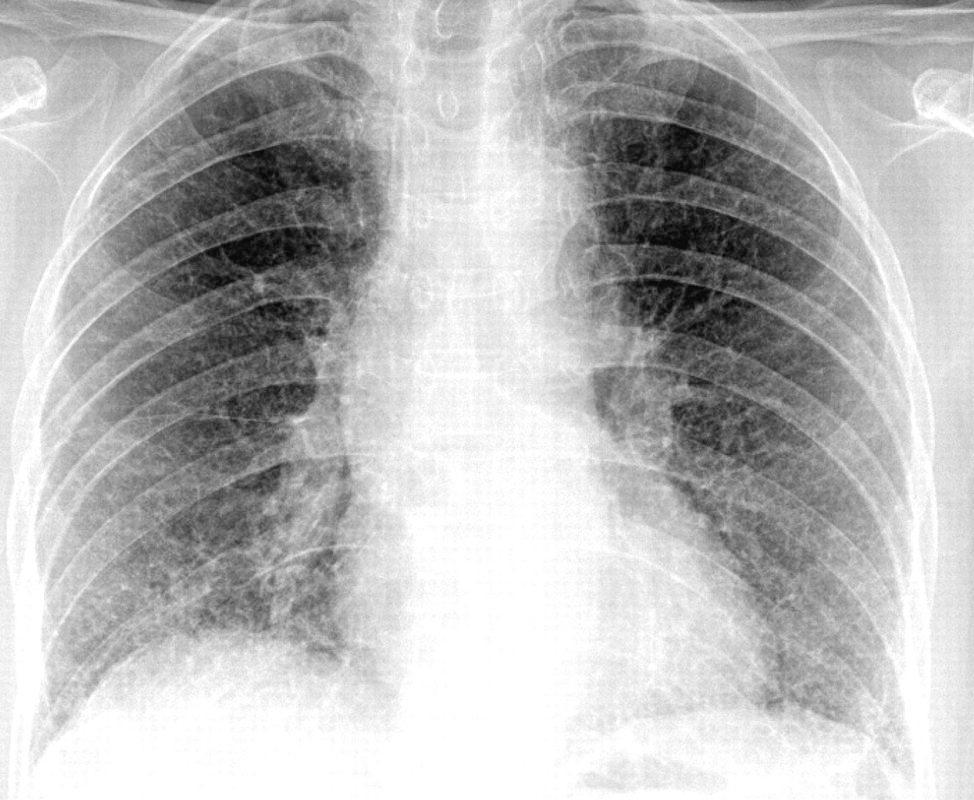 Пневмония острая первичная интерстициальная