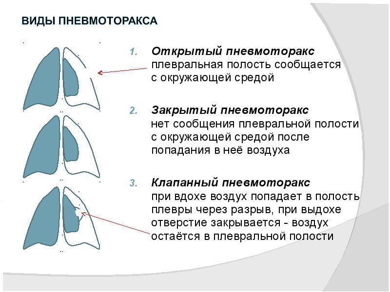 Пневмоторакс виды