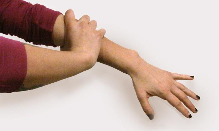 Почему болит левая рука