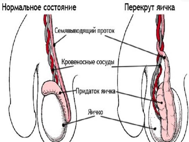 Если болят яички... - tiensmed.ru