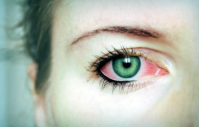 Почему краснеют глаза и болят