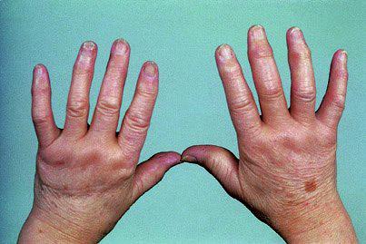 Полиартрит инфекционный неспецифический