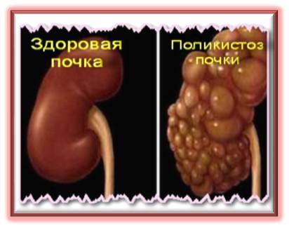 Поликистоз почек у человека лечение 12