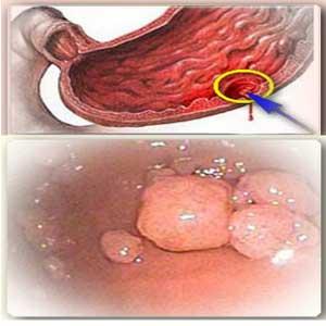 полипоз желудка