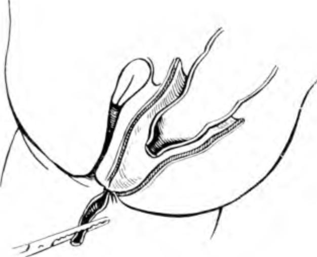 артрезия прямой кишки