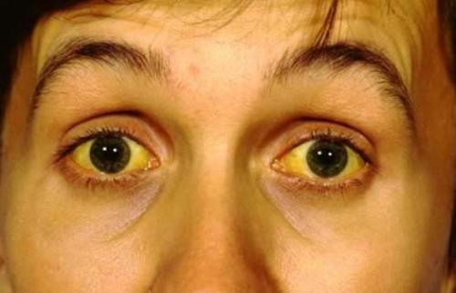 Постгепатитный синдром