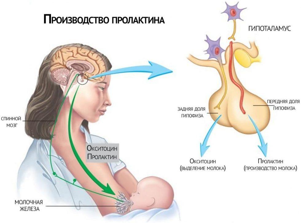 пролактинома