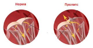 Пролапс митрального клапана у беременных 13