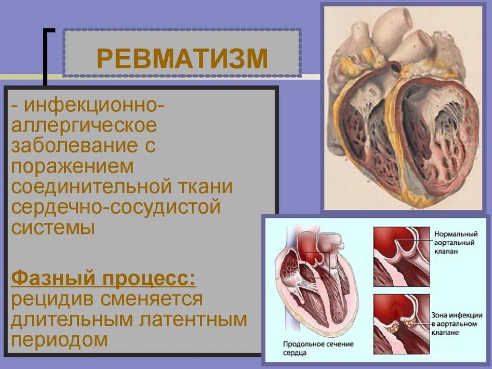 Ревматизм