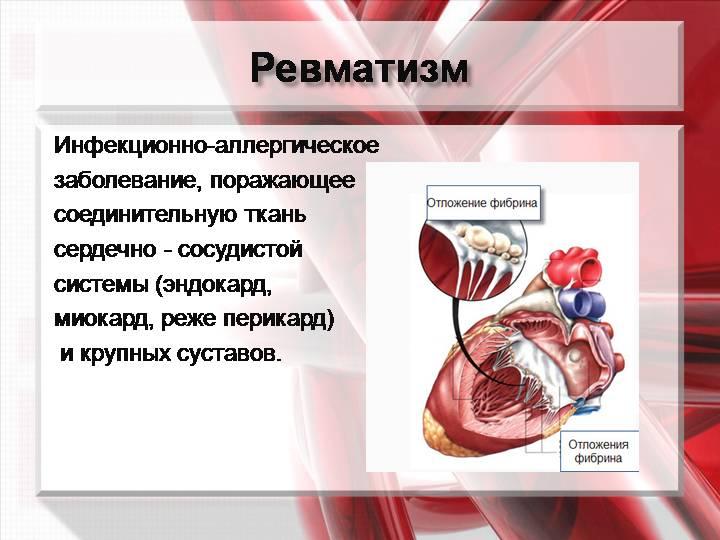 Ревматизм мышц симптомы лечение