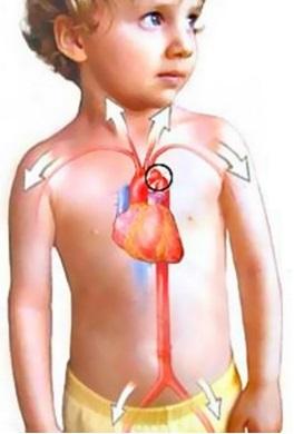 Сильное сердцебиение у детей
