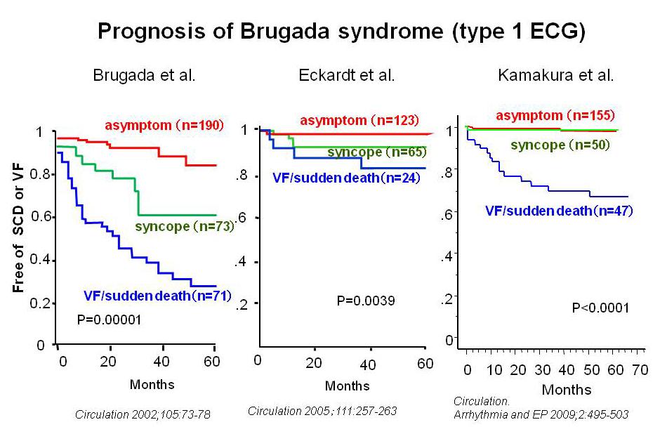 Синдром Бругада