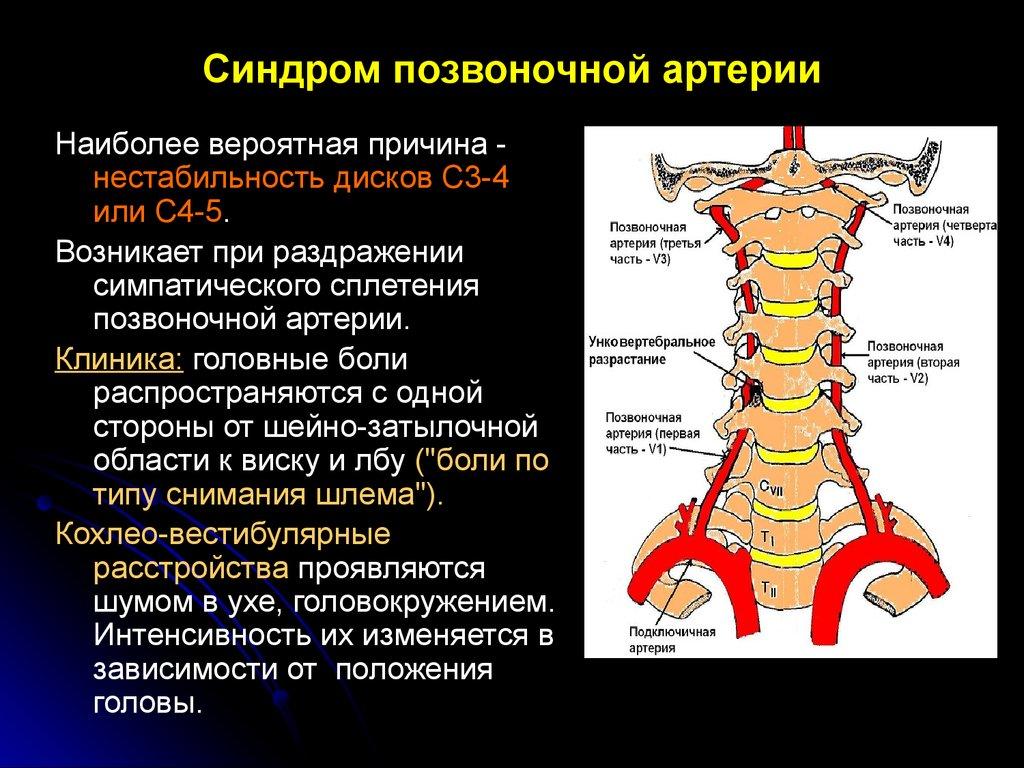 синдром позвоночной артерии причина и лечение