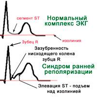 Синдром ранней реполяризации
