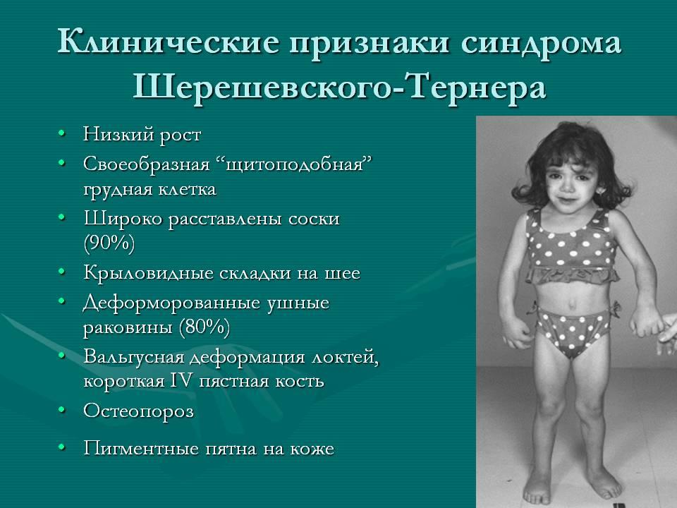 Синдром Шерешевского – Тернера