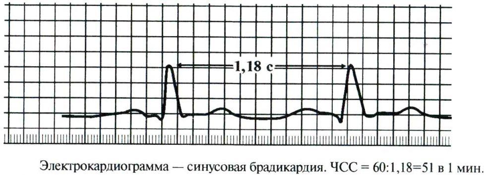 Синусовая брадикардия