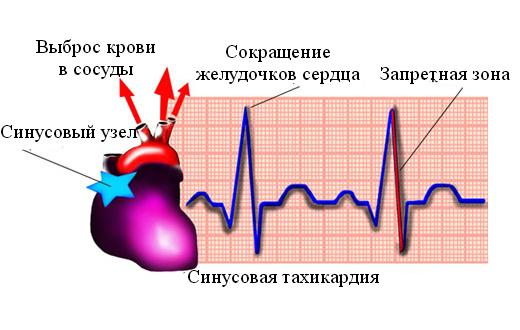 Синусовая тахикардия