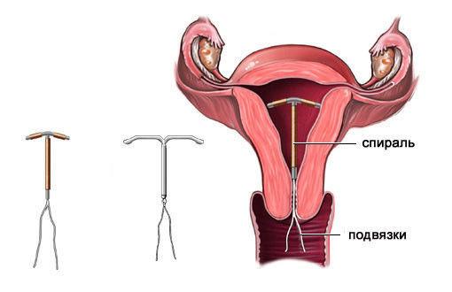 Спираль внутриматочная