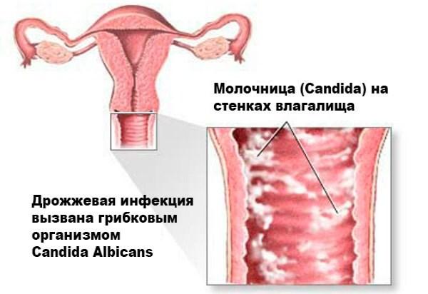 Спринцевание при молочнице
