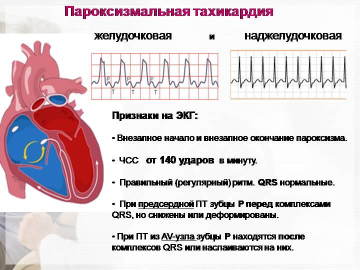 Тахикардия пароксизмальная