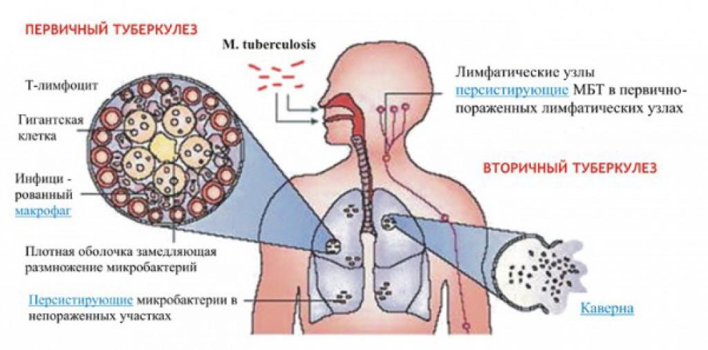 Туберкулез легких и язвенная болезнь как лечить