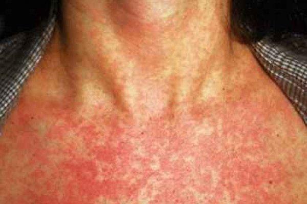 васкулит аллергический