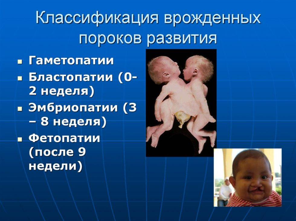 Врожденные дефекты развития