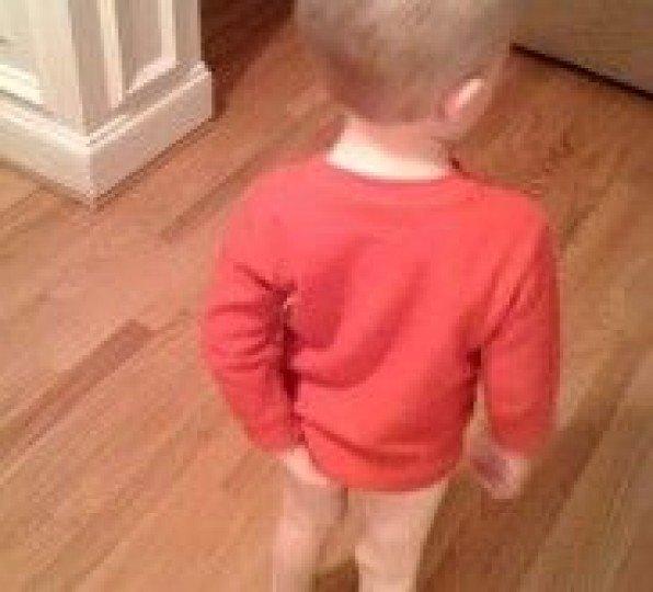 Выпадение прямой кишки у детей