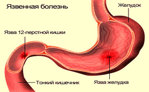 Язвенная болезнь